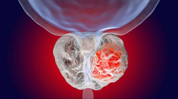 Научно-практическая конференция «Современные аспекты лечения рака предстательной железы»