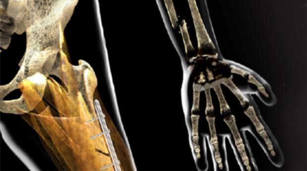 Образовательный семинар «Вопросы и ведение пациентов с костной патологией»